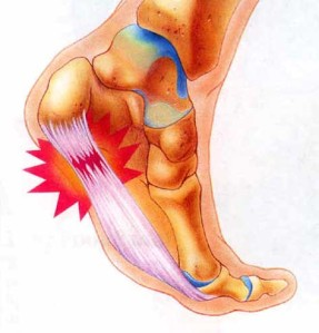 Showing where plantar fasciitis strikes under the foot